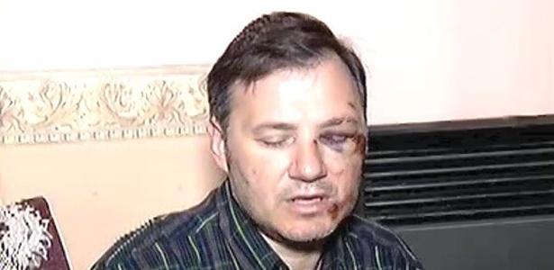 O professor Ricardo Fusco foi agredido na Argentina por mãe e aluno